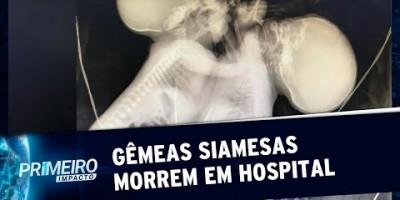 Gêmeas que compartilhavam o mesmo coração morrem em Goiânia | Primeiro Impacto...