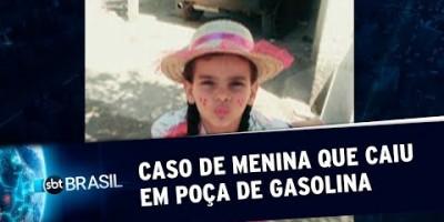 Mãe e avô estão envolvidos em caso de menina que caiu em poça de gasolina | SBT...