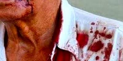 ABSURDO: Idoso é hospitalizado após ser agredido por filho