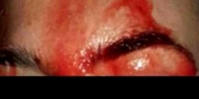 HOSPITALIZADA: Espancada após programa sexual com cliente em Porto Velho