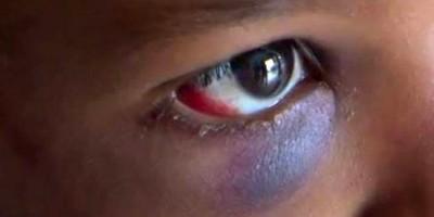 COVARDIA: Após discussão em boate, jovem é espancada pelo namorado