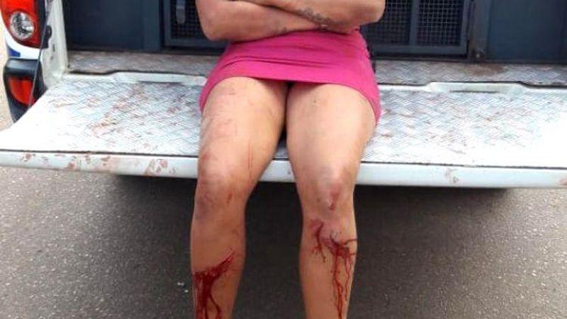 GRÁVIDA: Mulher surrada tenta impedir prisão do marido após destruição em apartamento