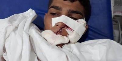 VALE DO ANARI: Jovem tem grave corte na face enquanto trabalhava com motosserra