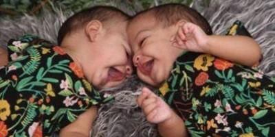 Gêmeas siamesas unidas pela cabeça passam por cirurgia no DF