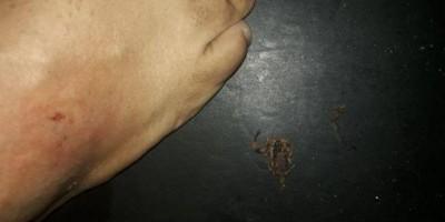 Homem é picado por escorpião em cinema