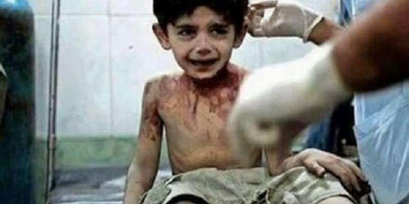 'Quando eu morrer, vou contar tudo a Deus', afirma criança vítima da guerra na Síria