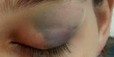 Esposa é espancada por expulsar marido que chegou tarde em casa