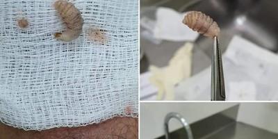 Paciente no Acre tem larva retirada da perna