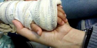 Pais são presos após criança de três anos ser socorrida com o braço fraturado