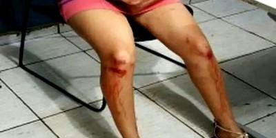 Mulher é espancada e arrastada pelos cabelos na rua pelo ex-marido em Porto Velho