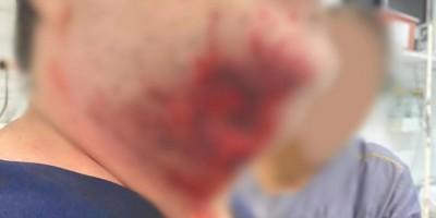Paciente surta, arranca pedaço de pescoço de médico com mordida e quebra portas de...