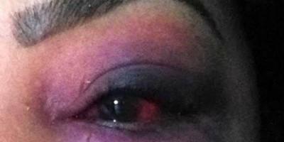 Ex-marido invade residência, espanca mulher e toma criança do colo dela