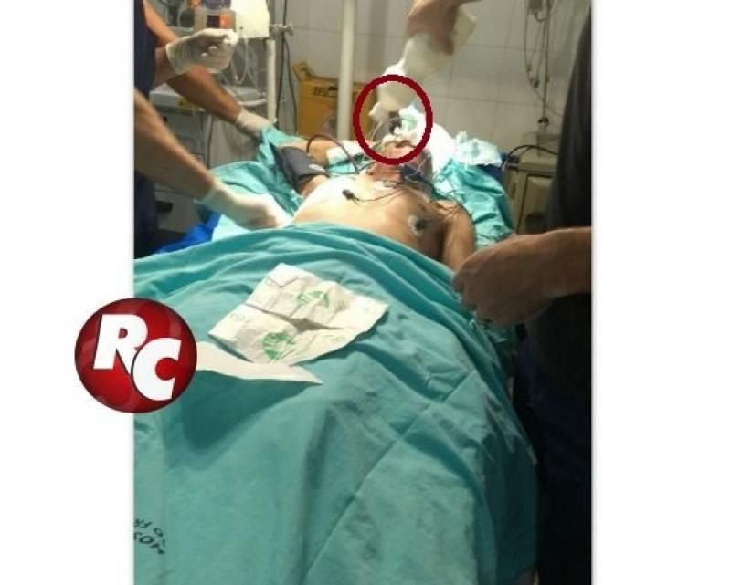 Após briga com desafeto, homem fica com faca cravada no olho, em São Francisco