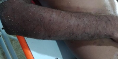 Homem é atendido em estado grave após levar mais 2 mil ferroadas de abelha em Ariquemes