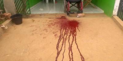 Cadeirante sofre tentativa de homicídio com tiro no rosto em Vilhena