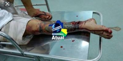 Em Ji-Paraná, homem é chamado na frente de sua casa, e leva tiro de desconhecido