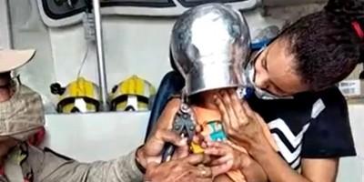 Menino de 2 anos fica com panela presa na cabeça em Ouro Preto