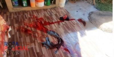 Vilhena: Homem é baleado no peito, mas foge e consegue sobreviver ao ataque