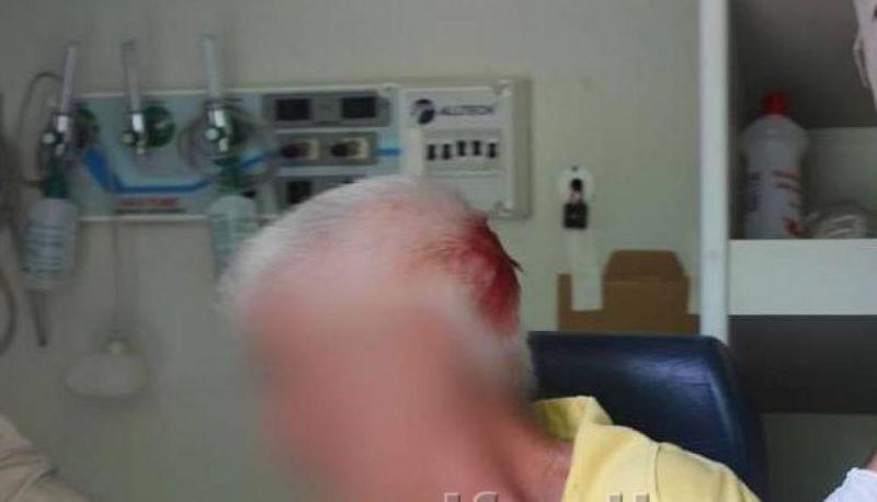 Adolescente de 16 anos com transtornos psiquiátricos tenta matar o próprio pai, de 62, a golpe de enxada