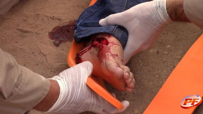 Garota é socorrida com ferimentos ao hospital após acidente entre motocicleta e carro no centro de Rolim de Moura